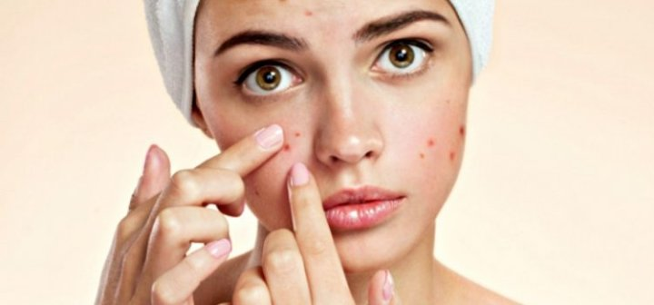Are you struggling with Acne?